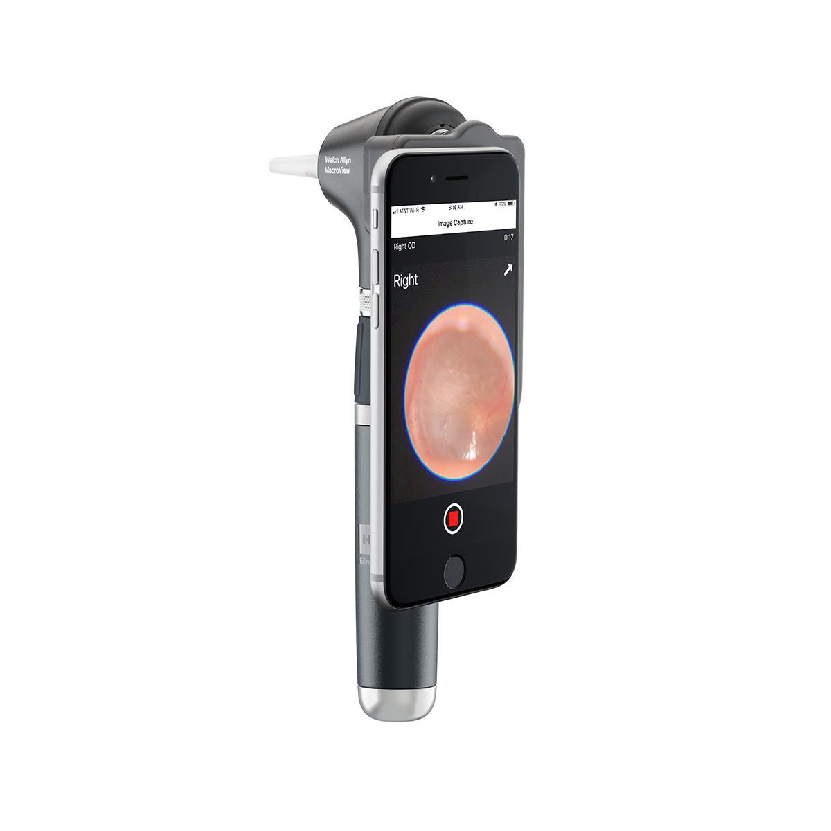 MacroView Plus otoscope, iExaminer SmartBracket, vertical orientation